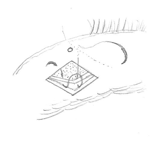 FIG. 4 Rimozione del lembo congiuntivale. Con un compasso si misurano 4mm sotto al punctum e da li` si rimuove un lembo di congiuntiva a forma di rombo con altezza verticale di 4mm e larghezza orizzontale di 6mm, centrato al punctum.