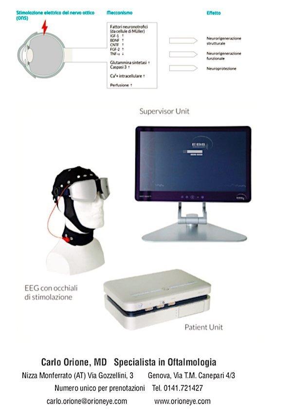 contro il glaucoma eyetronic